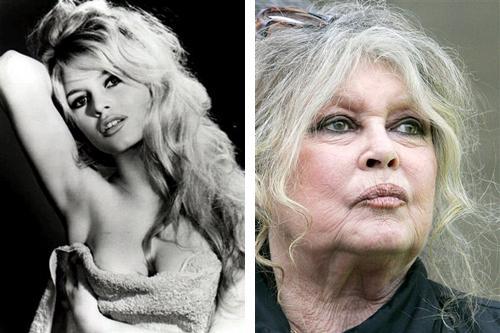 Cure aging#3 - Bridgette Bardot
