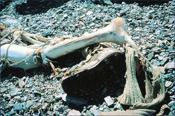 Mallory's frozen legs