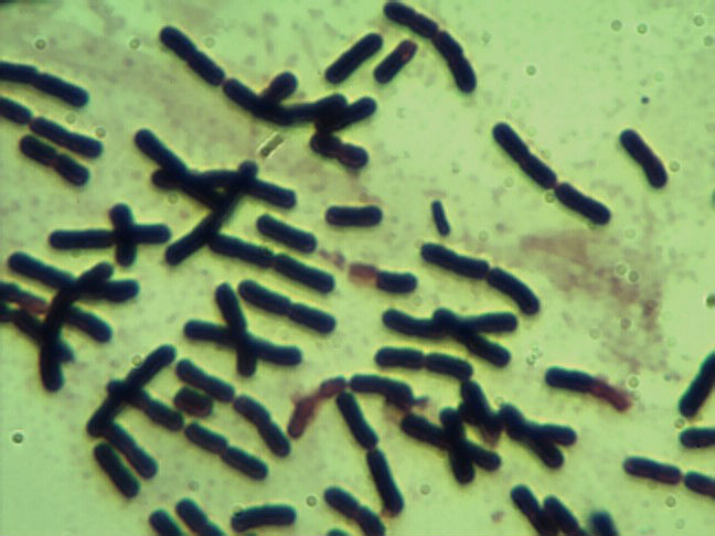 One of species of gut microbiota: Clostridium butyricum