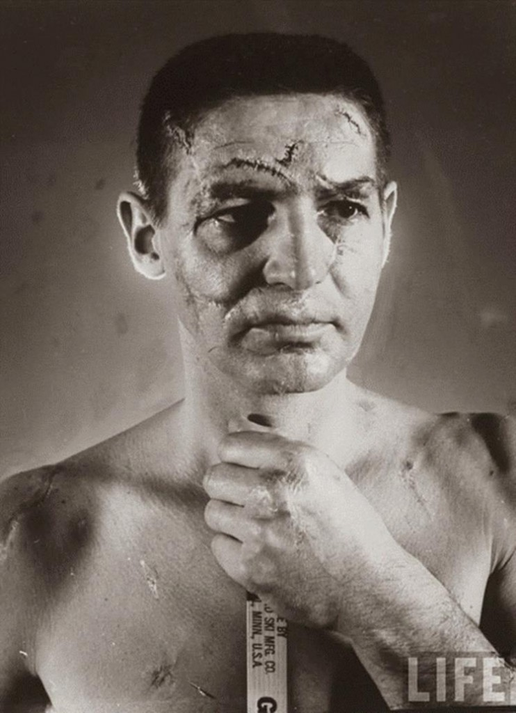 Portrait of hockey goalie Terry Sawchuk before face masks became standard in 1966