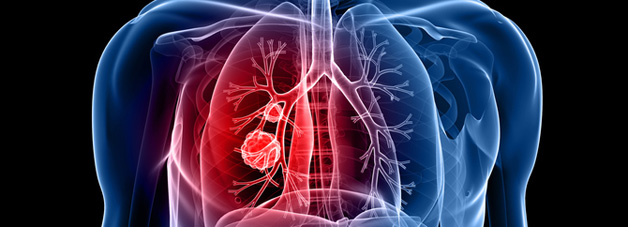 More than 44,000 people are diagnosed with lung cancer each year in the UK