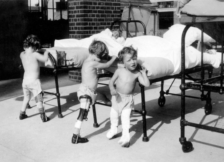 Young children polio patients doing physiotherapy exercises wearing calipers against their outside beds at Wingfield Nuffield Orthopaedic hospital in Oxfordshire
